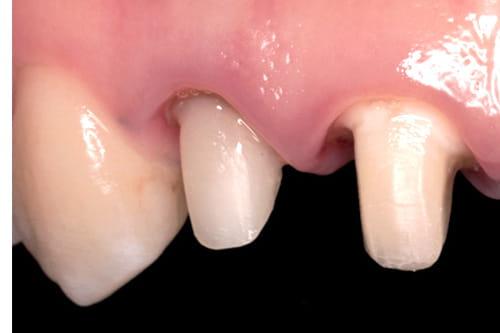 歯の土台の治療
