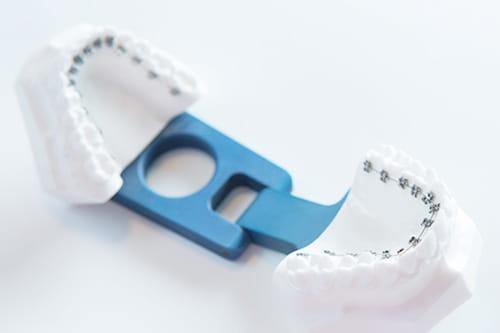 歯の裏側に装置をつける矯正治療