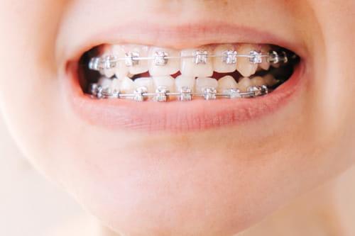 歯の表側に装置をつける矯正治療