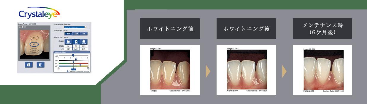 歯科用測色装置 クリスタルアイ