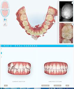 簡易シュミレーション・虫歯チェック